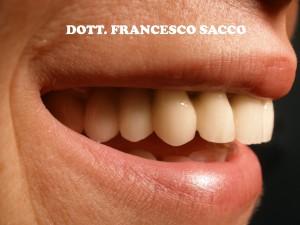 Estetica Dentale Dr. Francesco Sacco