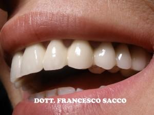 Estetica Dentale Salerno Dr. Francesco Sacco