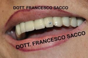 Dentista Salerno Dr. Francesco Sacco
